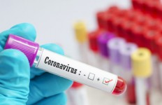 Blood sample tube positive with 2019-nCoV, novel coronavirus 2019 found in Wuhan, China